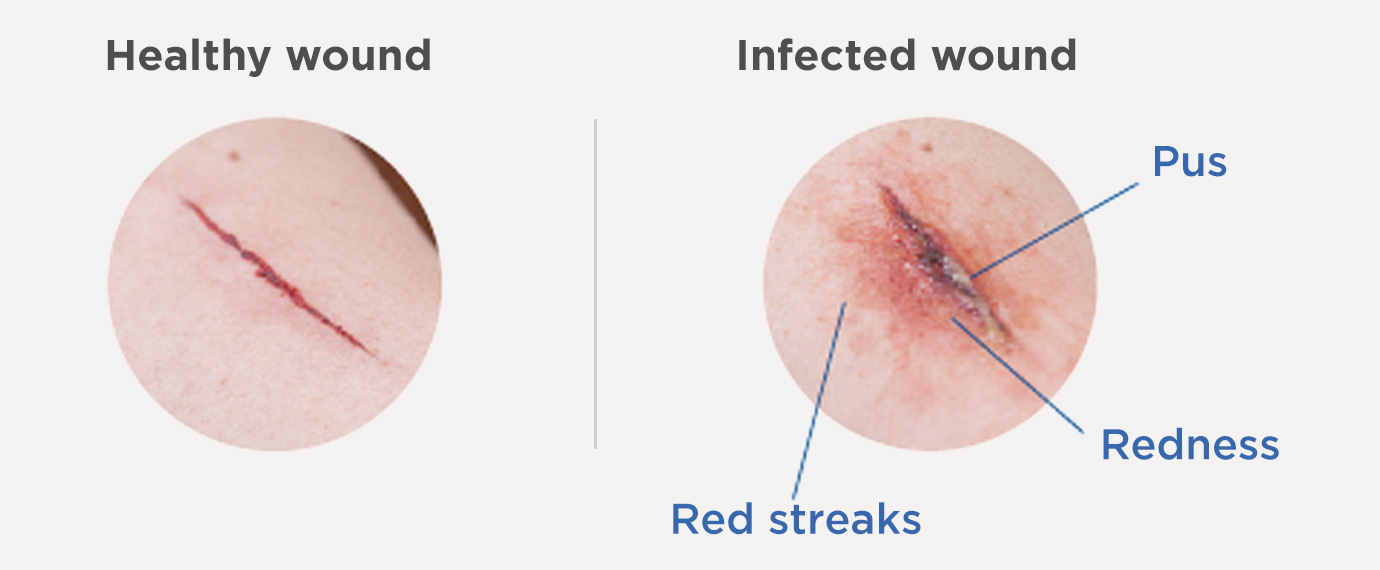 Infection of the surgical wound - Pictures