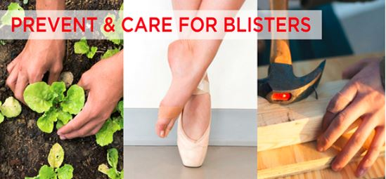 Close-up images of hands gardening, a ballet dancer wearing a foot blister bandage and a carpenter wearing a blister bandage