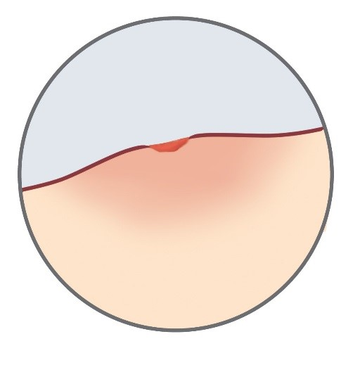 Stage 3 of an infection: swelling around an incision
