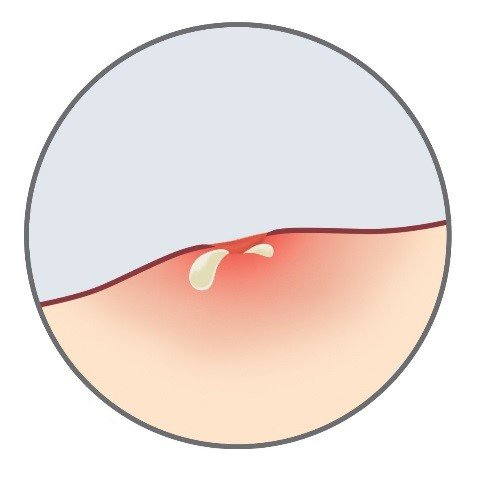 Stage 6 of wound infection: discharge, pus or odor